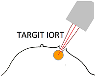 diagram-iort